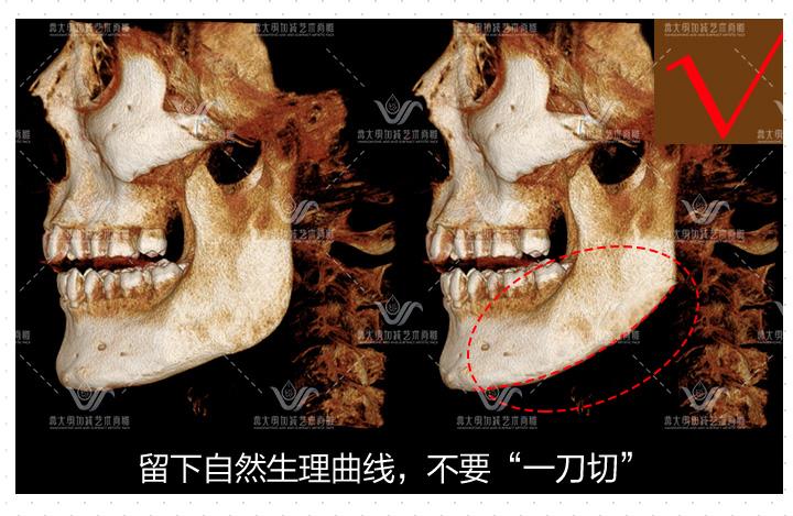 皇叔极线下颌角,新一代舒适截骨