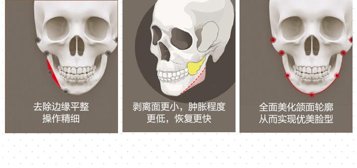 皇叔极线下颌角,新一代舒适截骨 极小切口